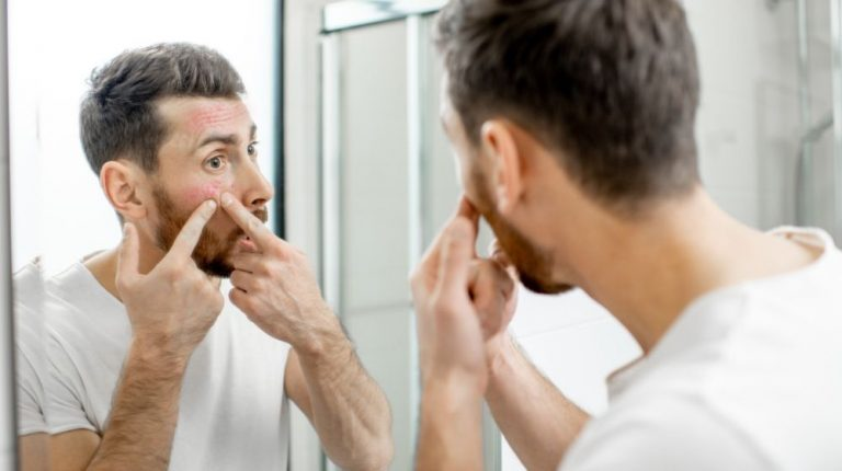 man popping pimple in front of the mirror | Feature | How to Treat Acne in Men Fast