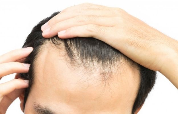 middle aged man with hair loss problem-ca | 7 Tips & Tricks To Deal With Receding Hairline In Men