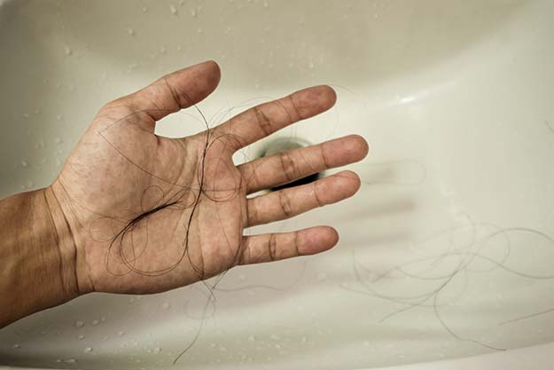 Excessive hair shed in the sink   Tell-Tale Sign that Your Hair is Thinning   How to Tell if Your Hair is Thinning