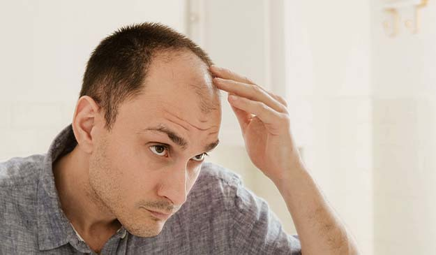 Man checking his thinned hair patch   Overview   How to Tell if Your Hair is Thinning