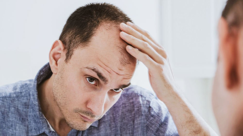 Male pattern hair loss problem concept. Young caucasian man looking at mirror worried about balding. Baldness, alopecia in males | Feature | Why Is My Hair Falling Out? Hair Loss Causes & Treatments