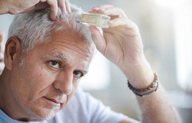 Senior man treating hair loss | Why Is My Hair Falling Out? Hair Loss Causes & Treatments