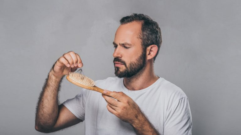 middle-aged-man-holding-hairbrush | feature | Telogen Effluvium: A Closer Look at Stress Related Hair Loss