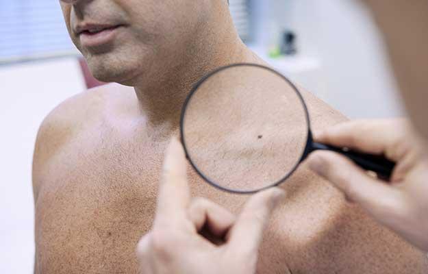 Dermatology-Consultation-Man | 9 Preventive Health Screening Tests For Men